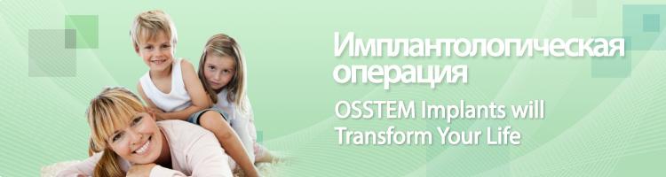 Имплант в сравнении с мостовидным и съемным протезом